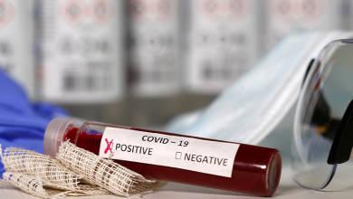 Photo of Aprueba Cofepris siete pruebas serológicas para coronavirus