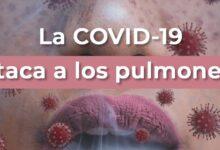 Photo of Advierten sobre nuevo riesgo para fumadores: el Covid-19