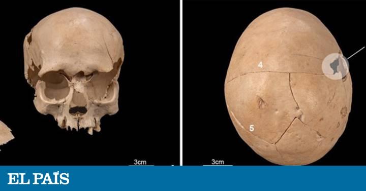 La anciana del dolmen que murió en el 'quirófano' 1