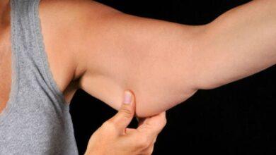 Photo of Cómo eliminar la flacidez de los brazos con cremas y cosméticos