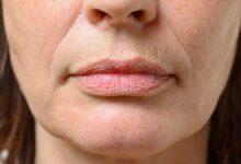 Cómo eliminar las arrugas de los labios o código de barras 2